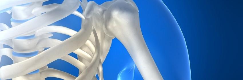 comprendre l'ostéoporose